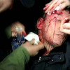 Луценко избил себя сам, так оправдывался перед послами Захарченко (ВИДЕО)