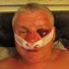 Лидера запорожского «Правого сектора» избили и похитили